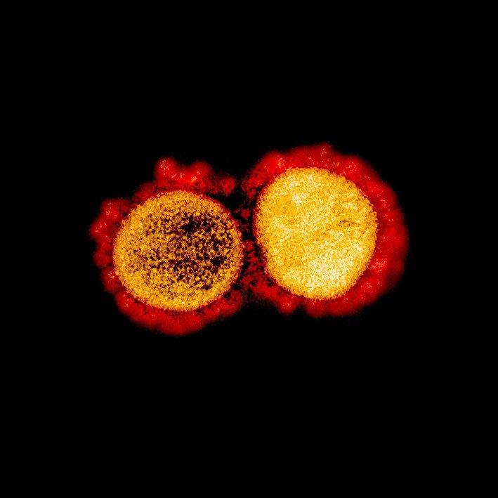 Virus Corona SARS-COV-2. FOTO: NIAID.NIH.GOV