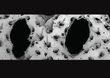 Bryozoa spesies baru Pleurocodonellina jeparaensis yang ditemukan di perairan Jepara, Jawa Tengah. FOTO: FPIK.UNDIP.AC.ID